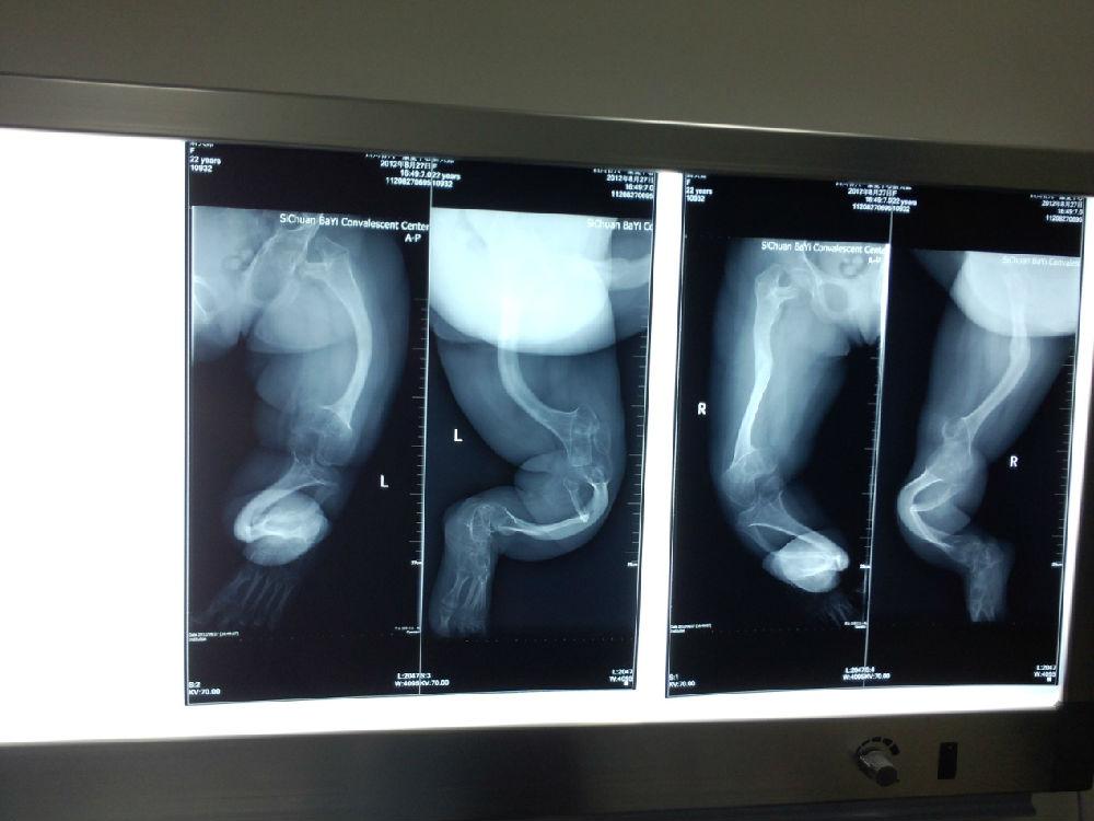 (图2还有病友的腿骨已经弯曲成一个直角)